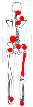 Chronic Pain Mapping Showing Trigger Points